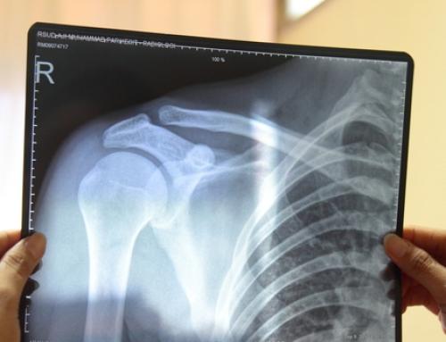 Imagerie médicale et douleur